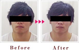 整顔矯正 Before→After